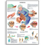 arthritis-chart-4006654-3b-scientific