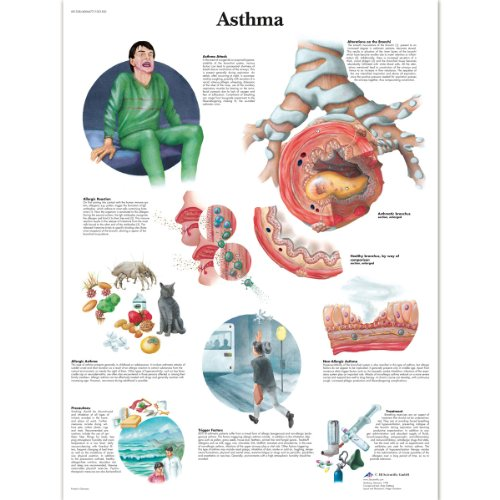 asthma-chart-1001520-3b-scientific