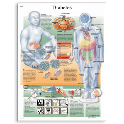 diabetes-mellitus-chart-1001554-3b-scientific_y4gz-pe