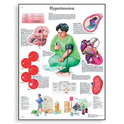 hypertension-chart-1001532-3b-scientific