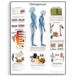 osteoporosis-chart-4006653-3b-scientific